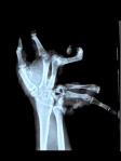 handtrauma